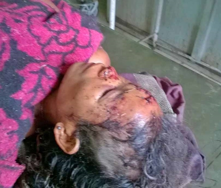 Nimai Rabha, beaten in attack in Assam state, India. (Morning Star News)
